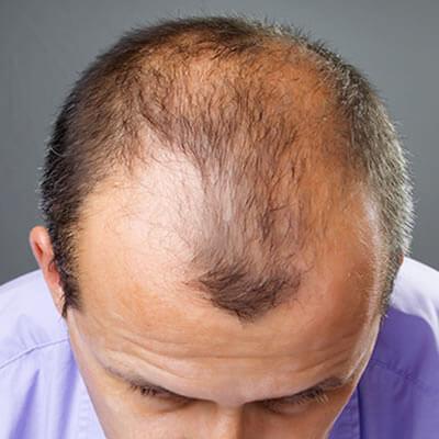 Greffe de cheveux Turquie 01